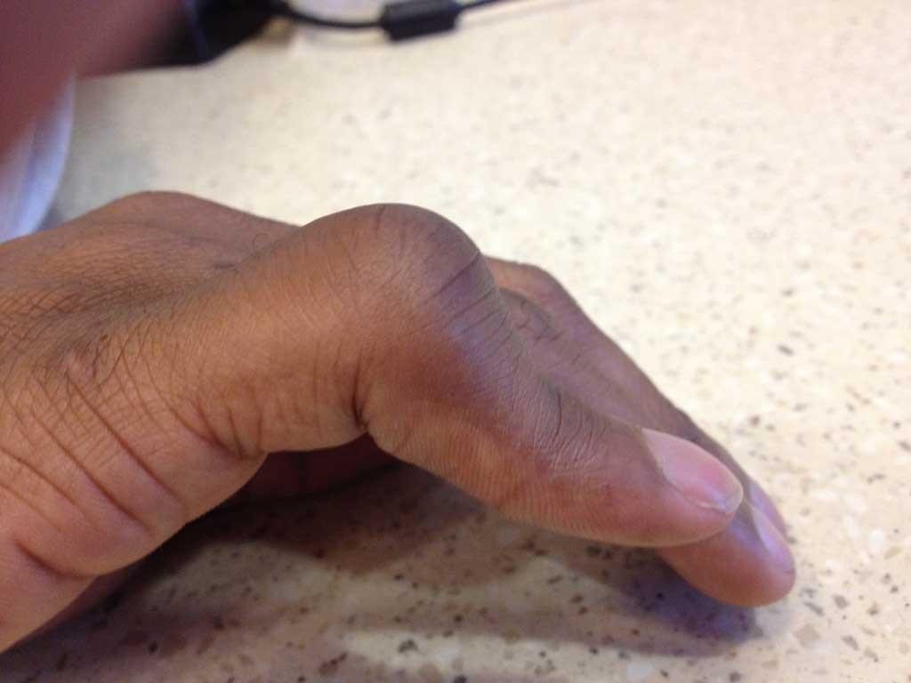 Image dun doigt atteint de la deformation en boutonniere