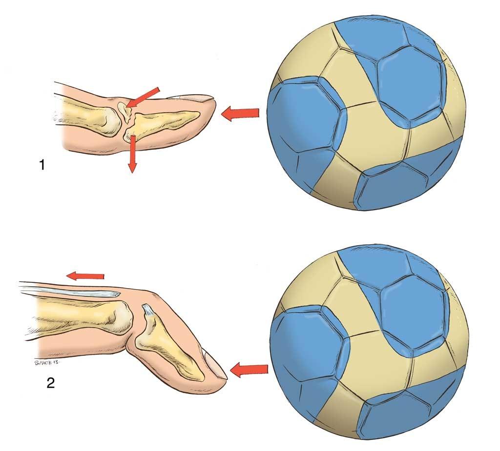 scheme montrant les differents types de  doigt en maillet au contact avec le ballon