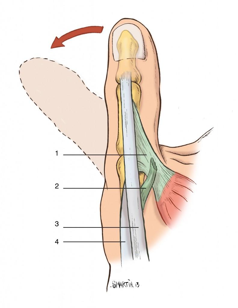schema montrant une rupture du ligament collateral ulnaire du pouce
