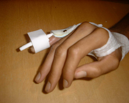 orthese en extension sur le doigt