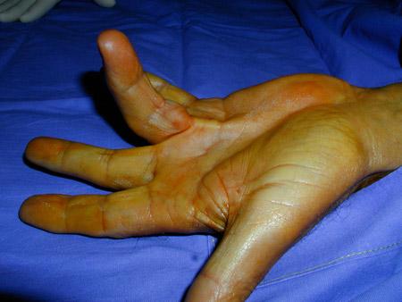 image indiquant la procedure daponevrotomie percutanee a laiguille pour la maladie de dupuytren