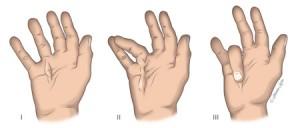 schema indiquant les différents stades de la maladie de dupuytren