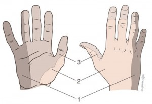 Innervation sensitive de la main: 1 - Nerf cubital 2 - Nerf radial 3 - Nerf médian
