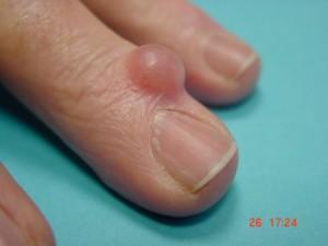 image montrant le kyste mucoide sur le doigt de la main