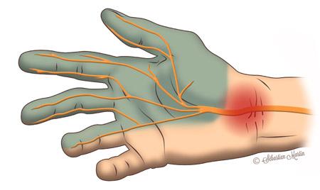 schema indiquant le trajet du nerf median atteint du symptome du tunnel carpien