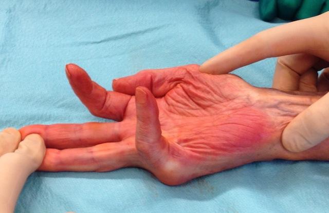 image montrant la main apres une aponevrectomie