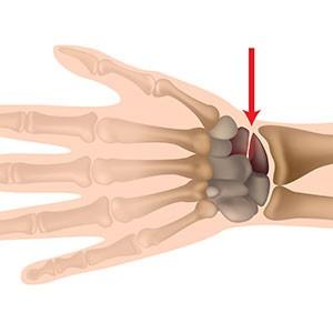 schema indiquant la localisation d'une fracture de poignet
