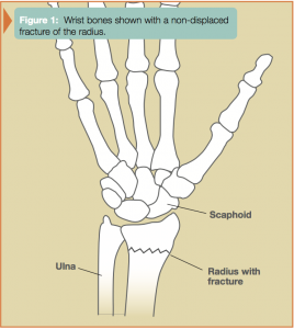 diagram of wrist bones shown with a non displaced fracture of the radius