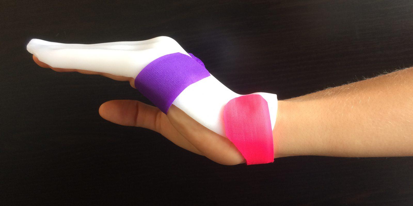 Du nouveau dans la rééducation des tendons fléchisseurs : Manchester Short Splint
