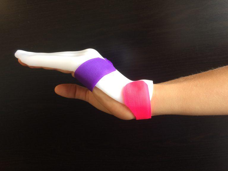 manchester short splint, une atelle des tendons flechisseurs avec mobilisation active precoce
