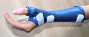 splint used to immobilise the thumb to treat de quervain tenosynovitis