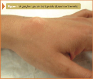 ganglion cyst on the top side (dorsum) of the wrist