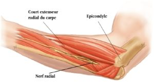 diagram outlining the tennis elbow epicondylitis