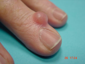 image showing a finger with a ganglion cyst