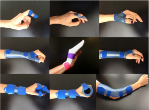 image showing a variety of static splints