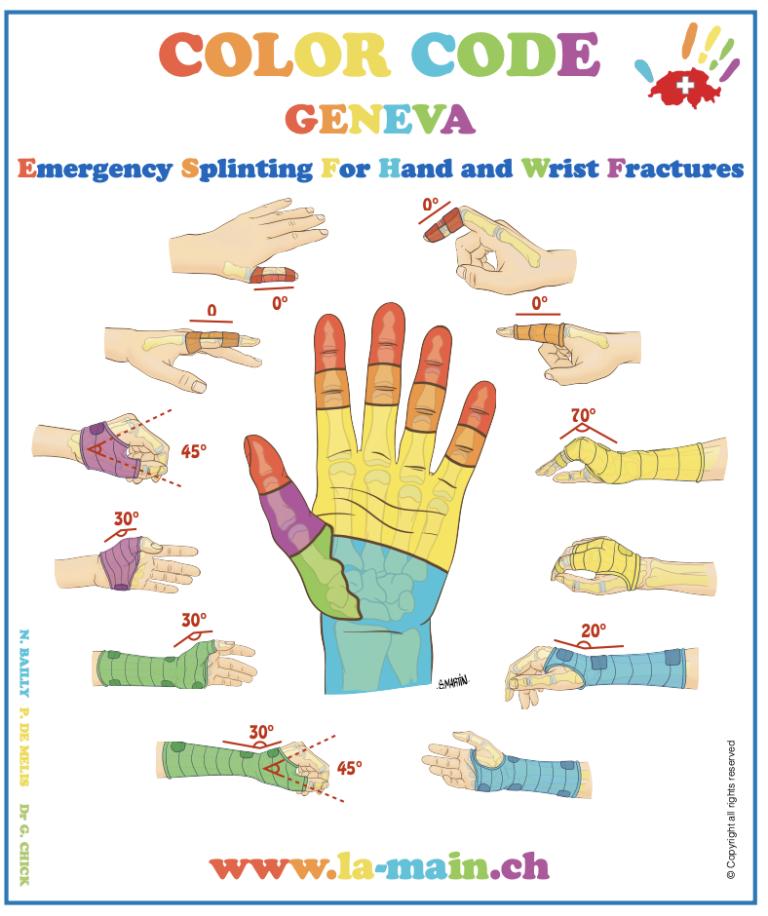 diagram indiquant les differentes attelles de la main et du poignet dans les urgences