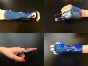 image showing a variety of dynamic splints