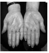 image displaying hands with the sudeck syndrome