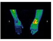 image of radiology used to display sudeck syndrome