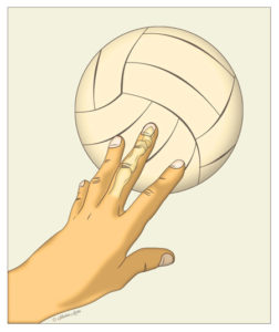 diagram showing the intersection between a ball and finger causing a mallet finger