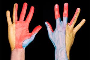 schema indiquant les differents territoires sensitifs de la main dont le nerf ulnaire le nerf radial et le nerf median