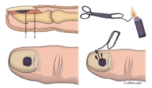 diagram showing the  evacuation of a subungual hematoma using a heated thrombone (thrombonization)