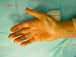 image showing a median nerve motor palsy