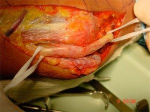 image of the ulnar nerve at the elbow