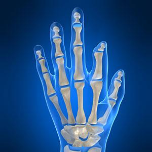 image radio de la main avec un doigt sectionne
